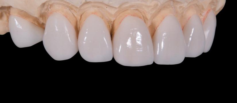 kas bendro tarp periodontito ir menopauzes